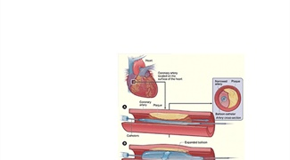 Math Models Enhance Current Therapies for Coronary Heart Disease