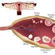 Math Models Analyze Impact of Insulin-Mediated Testosterone Production on Ovulatory Function