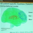 Image-Guided Neurosurgery: Computation of Brain Deformations